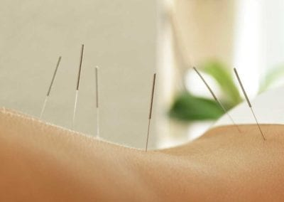 Acupuncture during COVID