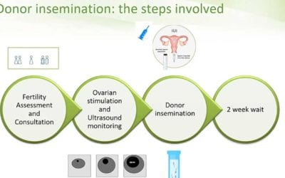 Donor Insemination or IVF: How to choose?