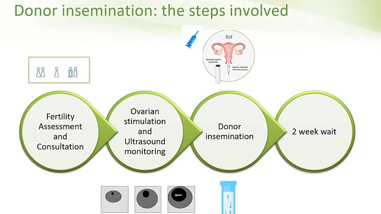 donor insemination or IVF